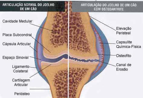 Joelho normal e com osteoartrose